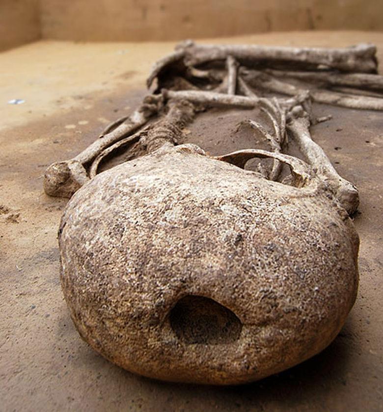 Neolithische Trepanation