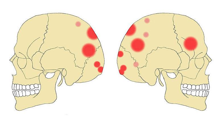 Grafik der Schädelverletzungen im neolithischen Massengrab