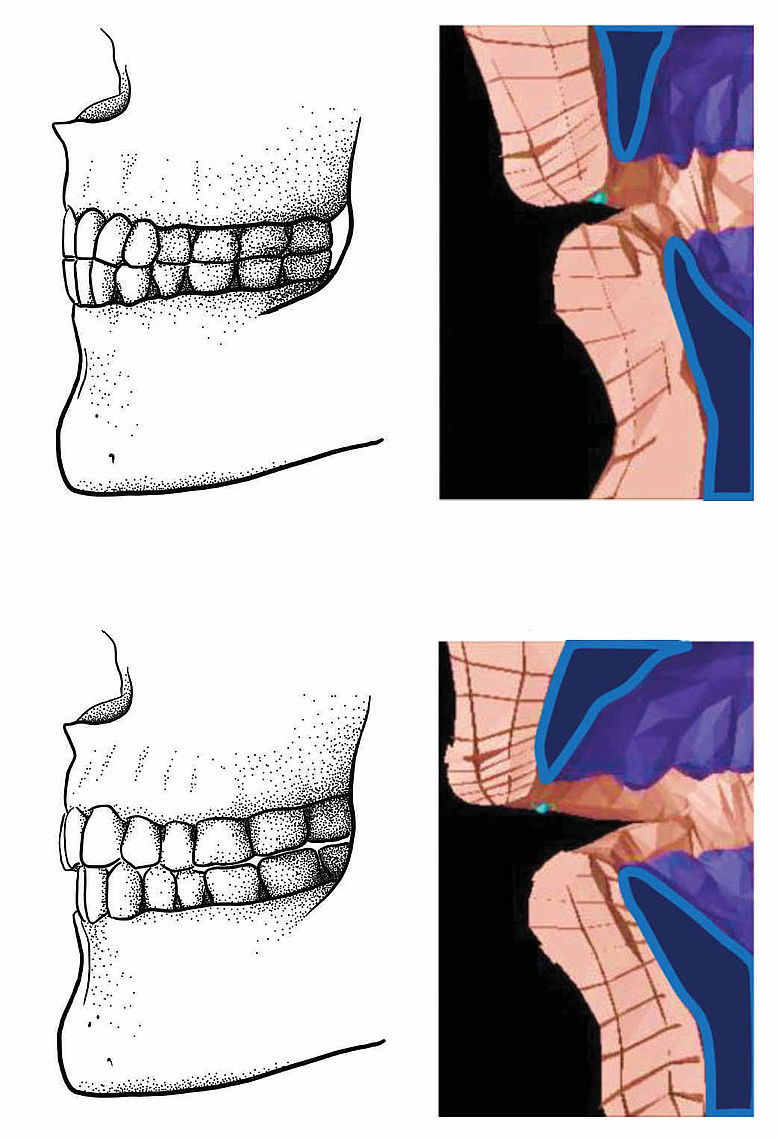 Paläolithischer Kopfbiss (oben), und moderne Gebissform (unten) und biomechanische Modelle im Vergleich.