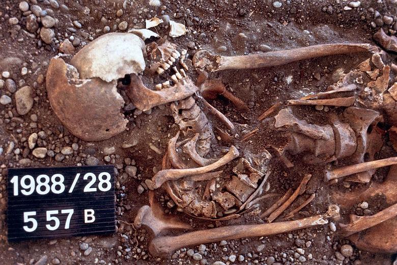 Skelett einer Fabrikarbeiterin des 19. Jh.
