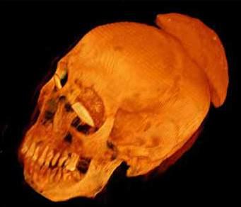 Farbige Darstellung des Schädels. Deutlich ist die Schale am Hinterkopf zu erkennen (Foto: Britisches Museum / SGI)