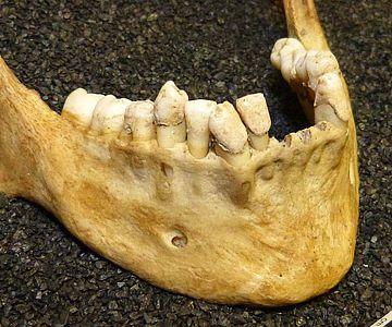 Zahnsteinablagerungen auf einem Gebiss