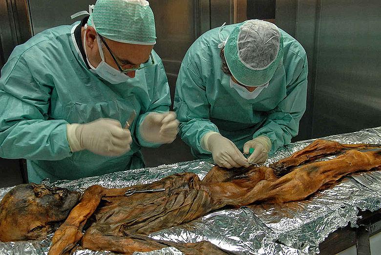 Gletschermumie Ötzi - Entnahme einer Probe
