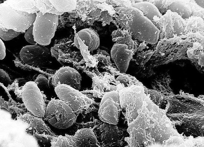 Elektronenmikroskopische Aufnahme des Pesterregers Yersinia pestis (Rocky Mountain Laboratories, NIAID, NIH)