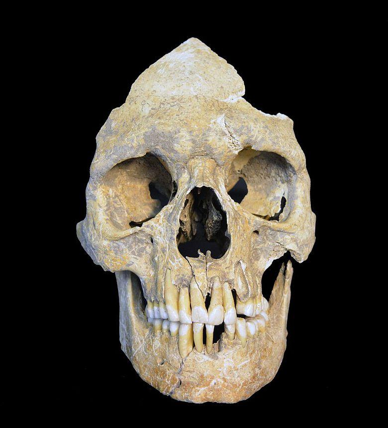 Neolithischer Schädel aus Karsdorf mit Hepatitis-B-Infizierung