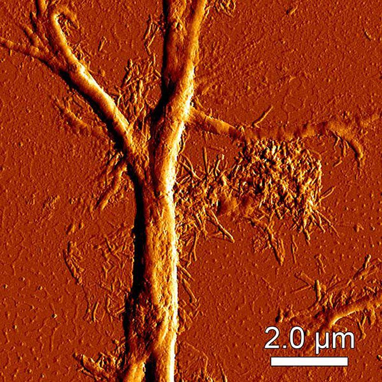 Nervenfäden in Ötzis Gehirn