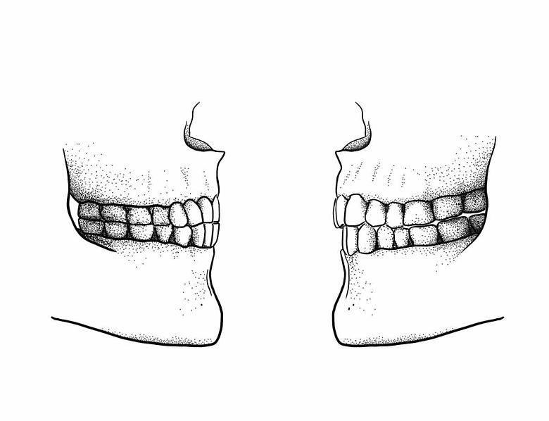 Paläolithischer Kopfbiss (links), und moderne Gebissform (rechts) im Vergleich.
