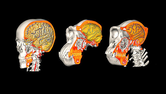 CT/MRI Mensch, Schimpanse, Gorilla