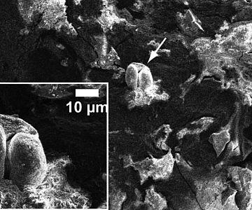 Mesolithische Nahrunsreste im Rasterelektronenmikroskop