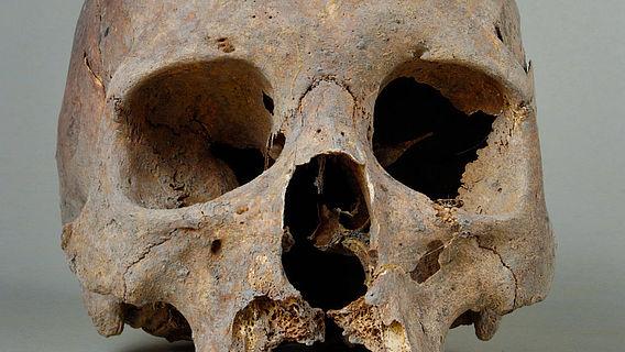 Schädel mit Anzeichen einer treponemalen Infektion