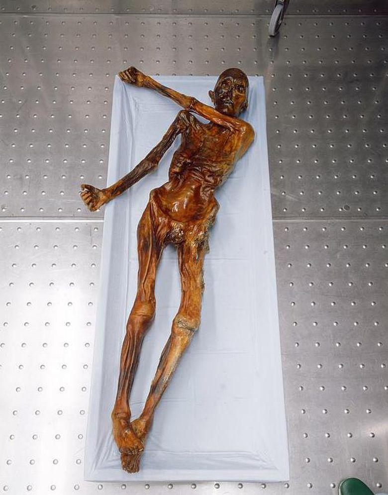 Ötzi ist die weltweit älteste bekannte Feuchtmumie (Foto: EURAC)