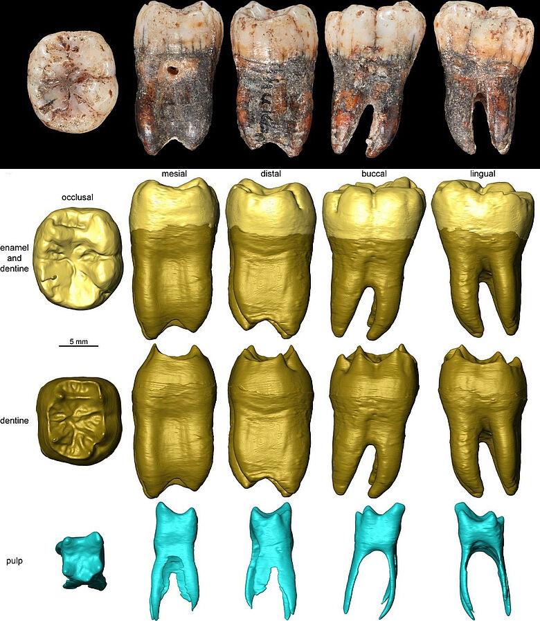 Zahn eines Neandertalerkindes