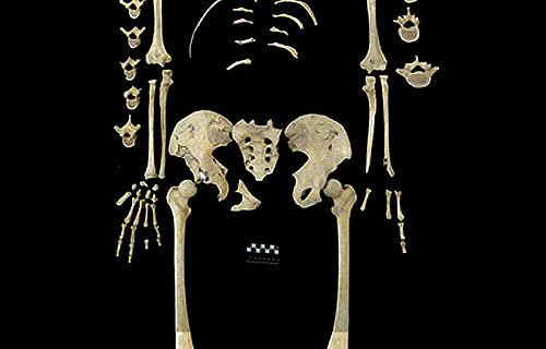 Skelett Leukämie Neolithikum