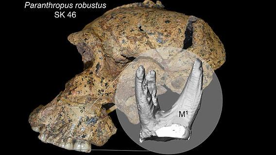 Schädel des Paranthropus robustus SK 46, Zahnrekonstruktion