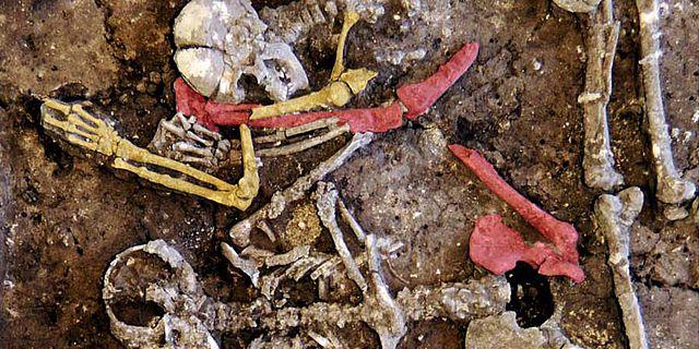 Unnatürliche Lage gebrochener Knochen