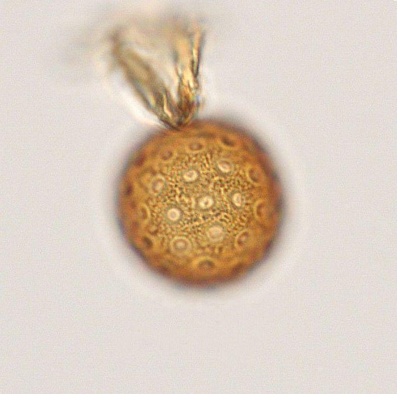 Ca. 8000 Jahre altes Pollenkorn