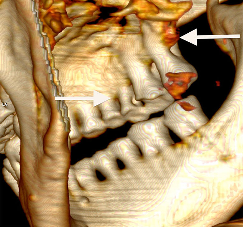 Ötzis Zähne, rechte Seite