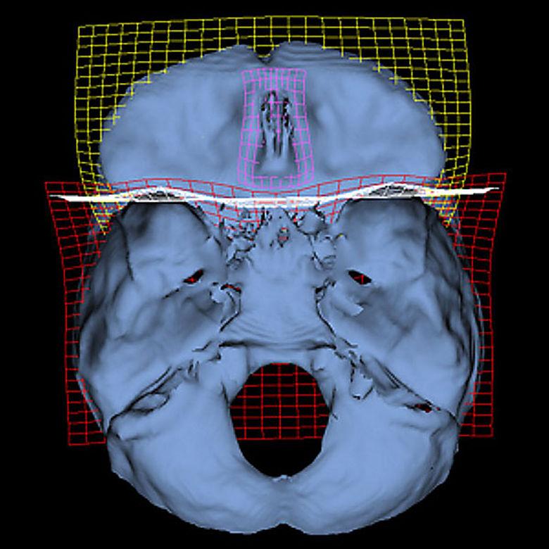 Unterschiede im Gehirn von Neandertaler und Homo Sapiens