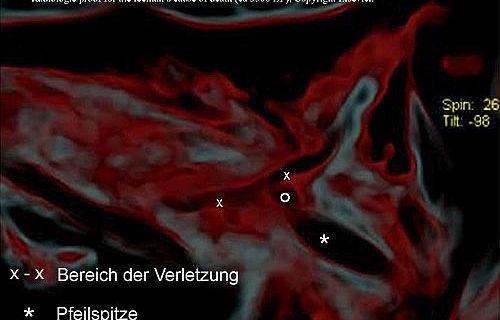 Das CT-Bild zeigt die Verletzung und die Pfeilspitze. (Foto: © Elsevier)