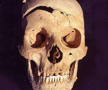 Schädel mit Hiebverletzung