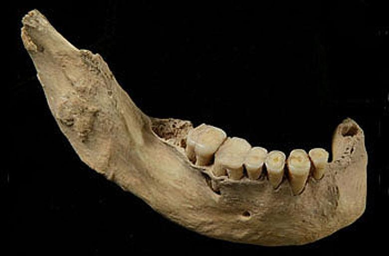 Unterkiefer des 40 000 Jahre alten menschlichen Skeletts aus der Tianyuan-Höhle: Analysen des Knochenkollagens zeigen, dass dieser Mensch regelmäßig Fisch konsumiert hat. (Hong Shang / Chinesische Akademie der Wissenschaften, Peking)
