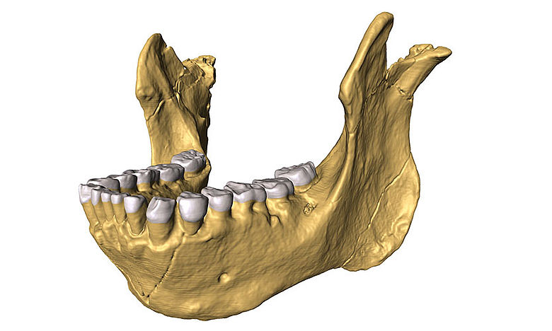 3D-Rekonstruktion des Unterkiefers