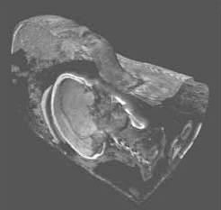 Längsschnitt durch das Kopfteil der Cartonnage. Deutlich sind der Schädel und die Wirbel erkennbar. (Foto: Britisches Museum / SGI)