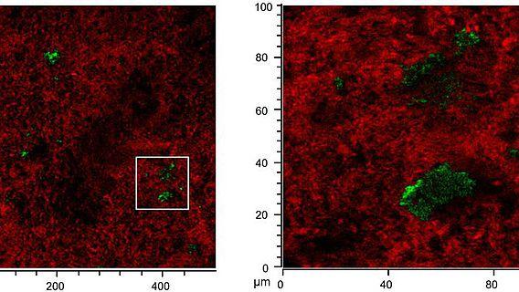 SIMS Daten zeigen die Lipide (grün) in der anorganischen Matrix (rot)