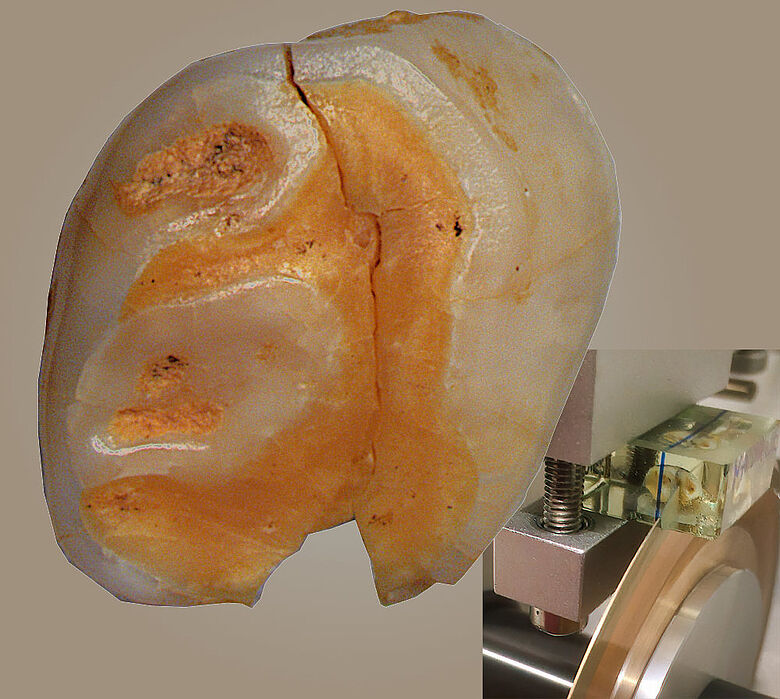 Milchzahn eines Neandertalers