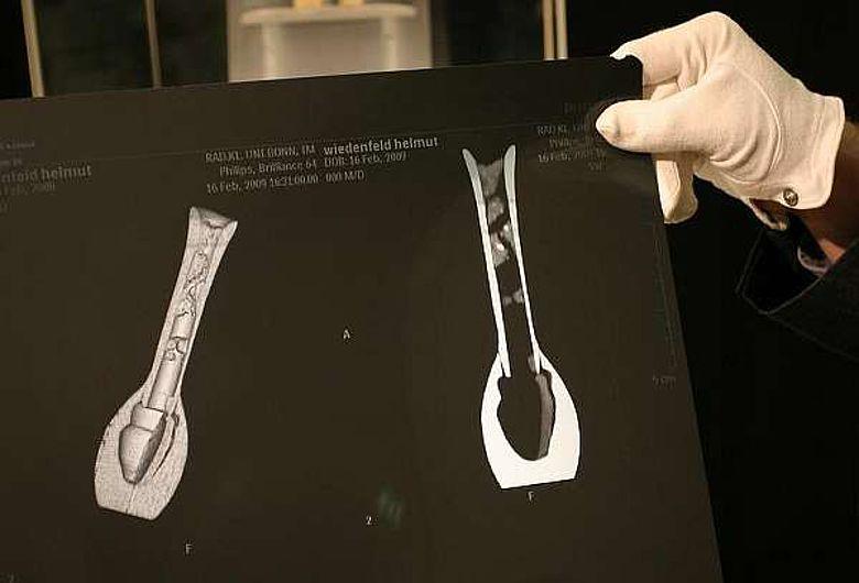In den Röntgenaufnahmen kann man eindeutig die eingetrockneten Reste einer Flüssigkeit erkennen. (c) Frank Luerweg, Universität Bonn