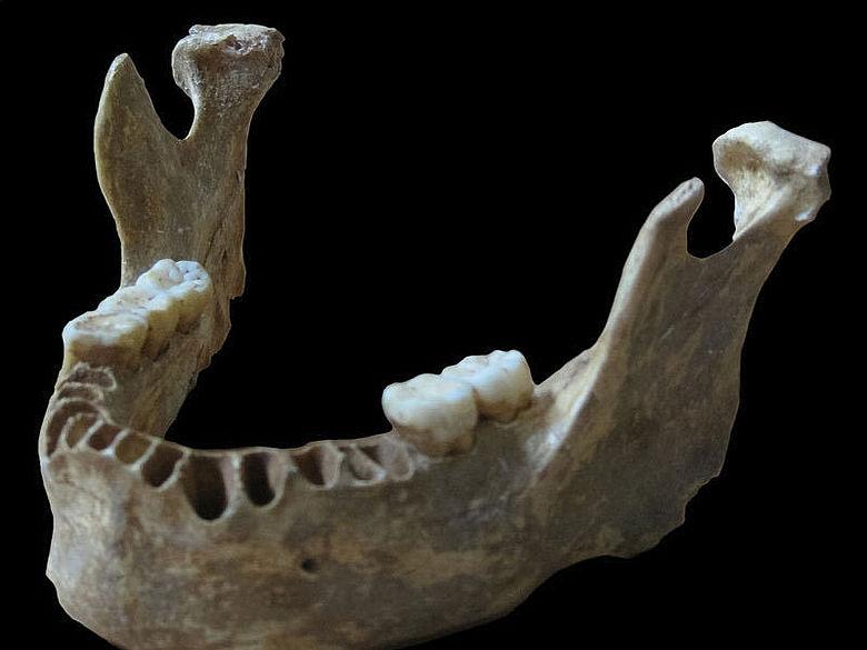 Homo sapiens Kiefer