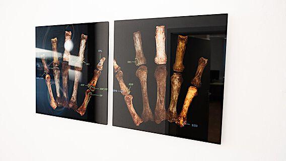 3D-Modell von Handknochen, mit Markierungen, wo die Muskeln ansetzen