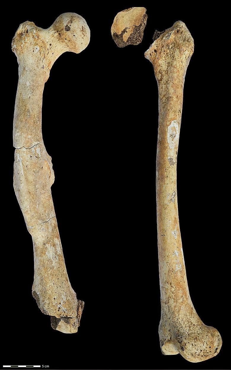 Rechter und linker Oberschenkelknochen (Os femoris) mit krankhaften Veränderungen des für die Studie untersuchten Mannes aus dem Nordkaukasus