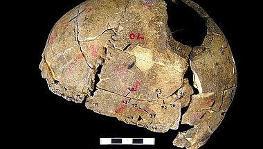 Schädel mit Hiebverletzung (Foto: S. Hourticolon, Universität Göttingen, Historische Anthropologie und Humanökologie)