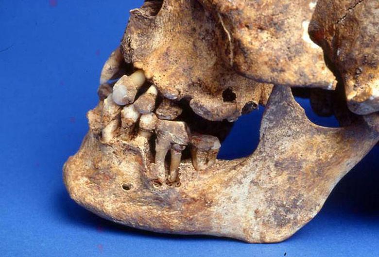 Zahnsteinbildung im Mittelalter