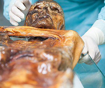 Untersuchungen an Ötzi, dem Mann aus dem Eis