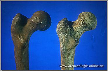 Vergleich des Gelenkkopfes vom Oberschenkelknochen