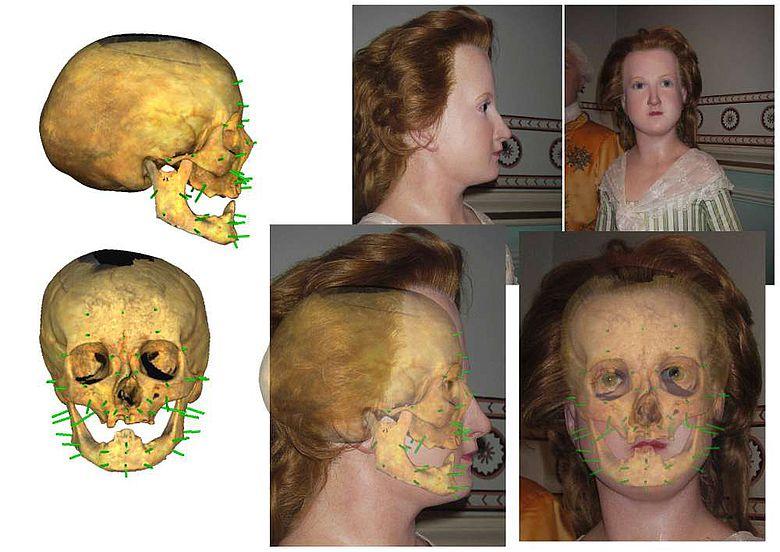 Gesichtsrekonstruktion mit eingeblendetem Schädel
