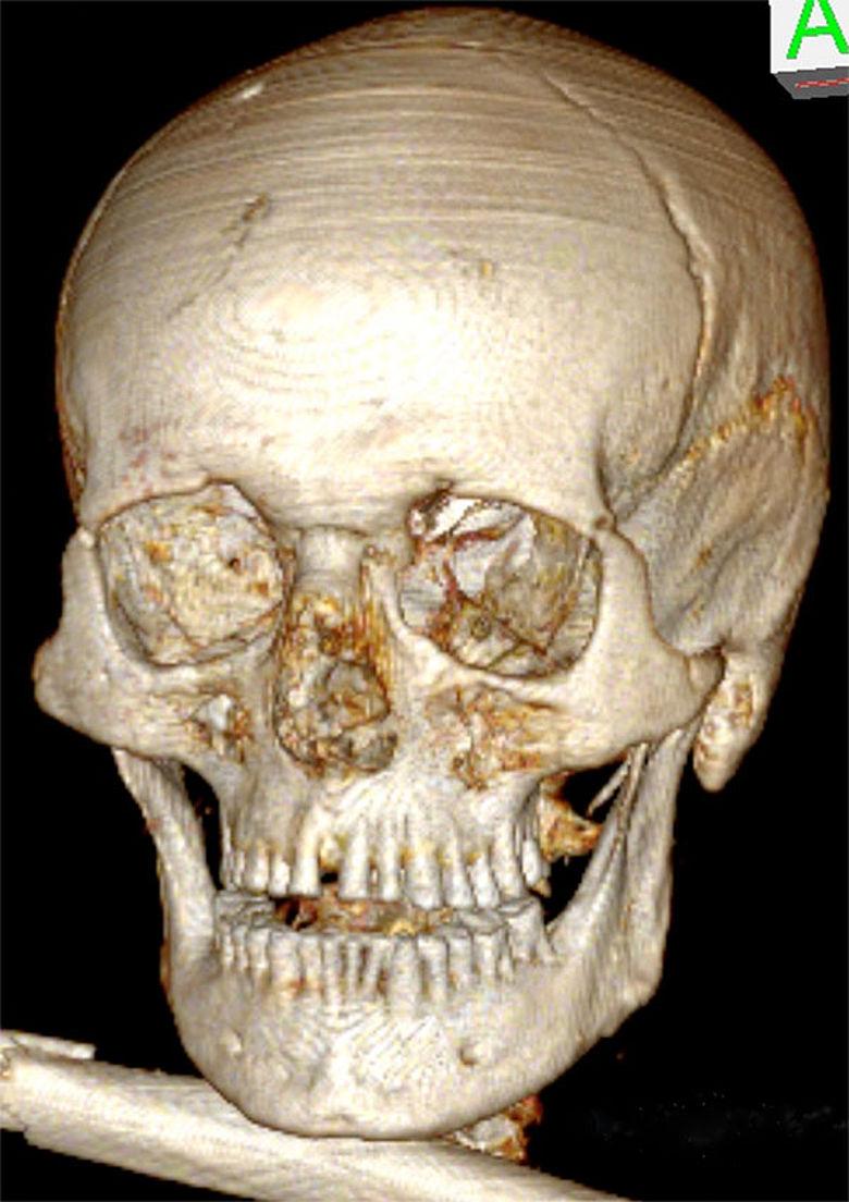 Ötzi-Schädel