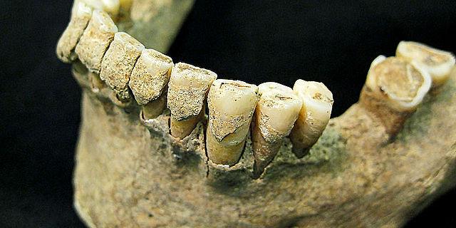 Mittelalterlicher Zahnstein