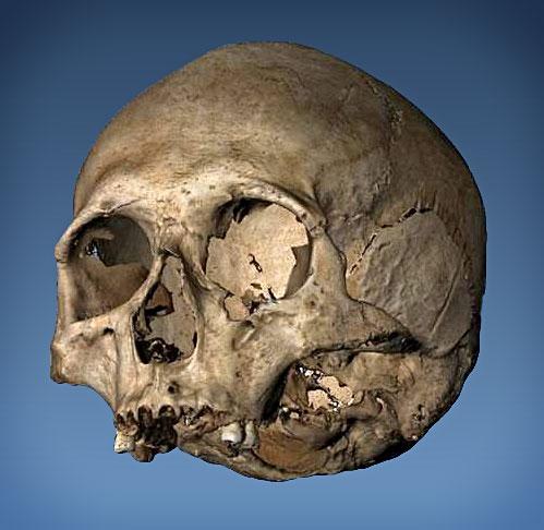 3D Scan Schädel Eisenzeit