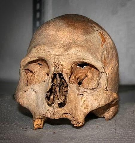 neolithischer Männerschädel
