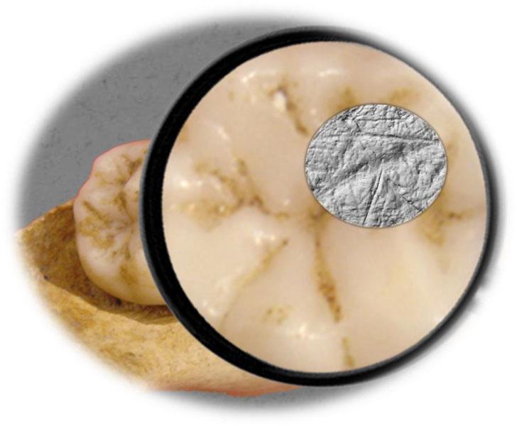 Abnutzungsspuren auf Zahnoberfläche