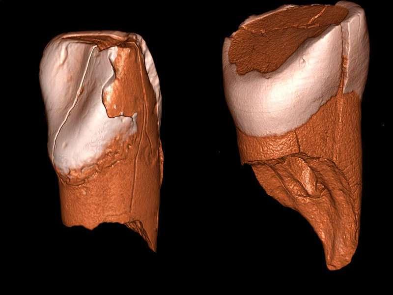 Dreidimensionale digitale Modelle des unteren Schneidezahns aus Riparo Bombrini und des oberen Schneidezahns aus der Grotta di Fumane